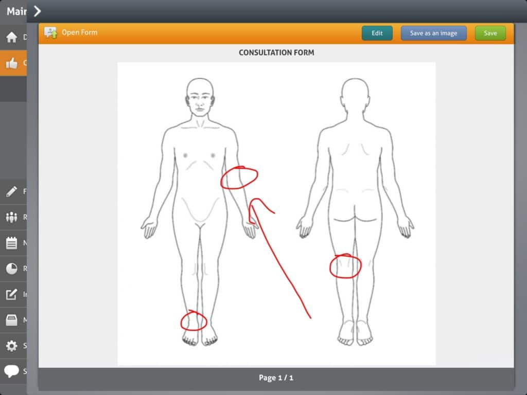Sports therapy Body Chart